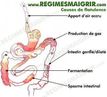 Sch�ma qui r�sume les principales causes possibles de production de flatulences