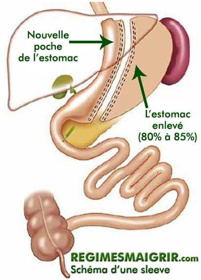 Schéma d'une sleeve gastrique