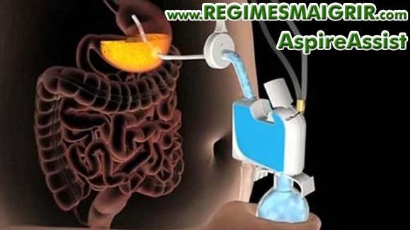 Aspire Assist est une pompe qui propose de vider le contenu de l'estomac d'un tiers avant que les calories ne soient absorbées par l'organisme