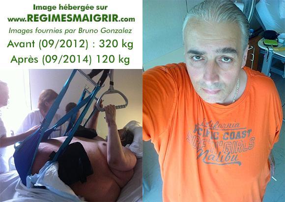 Bruno Gonzalez aura perdu 200 kg en 2 ans sans op�ration bariatrique