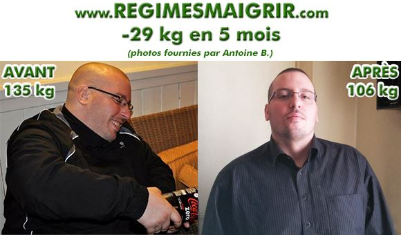 Antoine a perdu 29 kilogrammes en 5 mois gr�ce � une sleeve