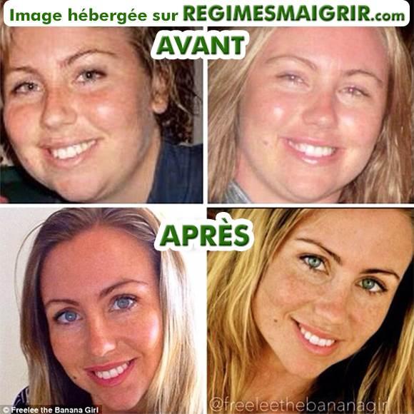Transformation du visage de Freelee grâce à son régime 30BaD