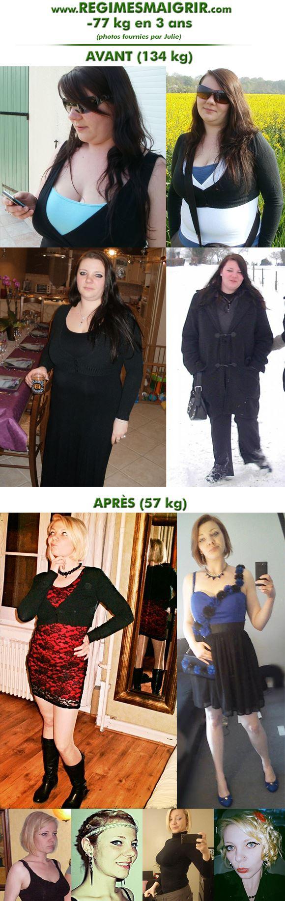 Julie a obtenu un changement visuel du corps très spectaculaire grâce à une perte de poids de 77 kilogrammes en 3 ans