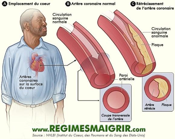 Schéma expliquant la différence entre une artère normale et une autre rétrécie par les plaques