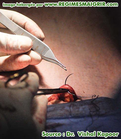 Suturer l'incision après avoir fini l'abdominoplastie