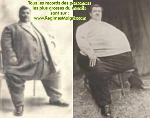 René REMOND, le français le plus gros de l'histoire, pesa environ 311 kilogrammes. Il était surnommé le Colosse Jurassien