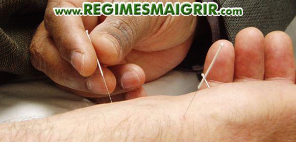 Un acupuncteur plante des aiguilles sur la main d'un patient