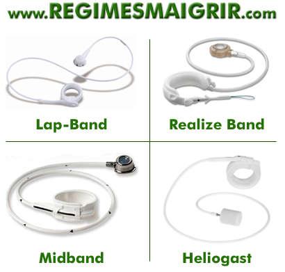 4 types d'anneau gastrique