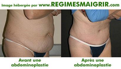 Avant et après une opération chirurgicale d'abdominoplastie