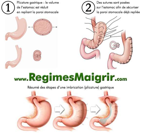 Schéma expliquant le déroulement d'une imbrication (plicature) gastrique