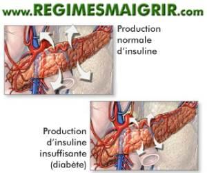 Une production d'insuline insuffisante survient chez les patients diabétiques