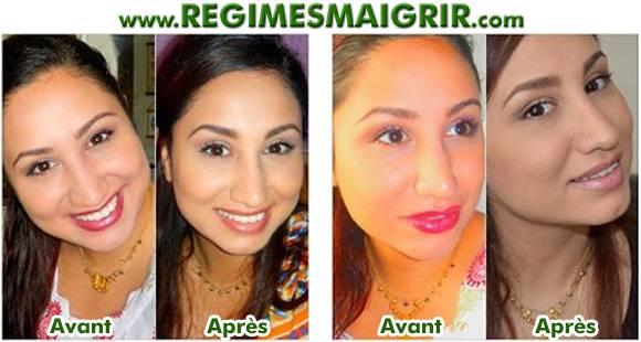 La transformation du visage de Mehnaz, une jeune femme qui a perdu neuf kilos en deux mois