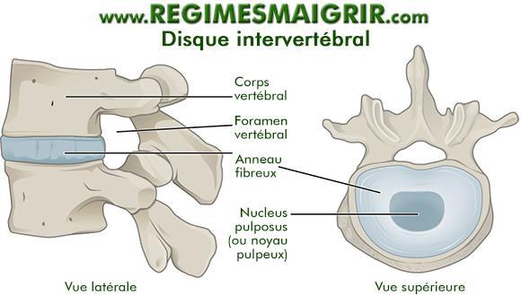 Vue latérale et supérieure du disque intervertébral