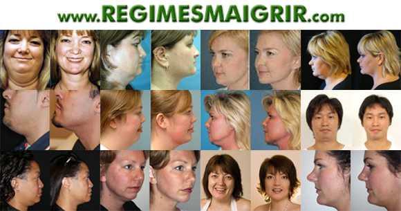 Quelques exemples d'avant et après amincissement du visage