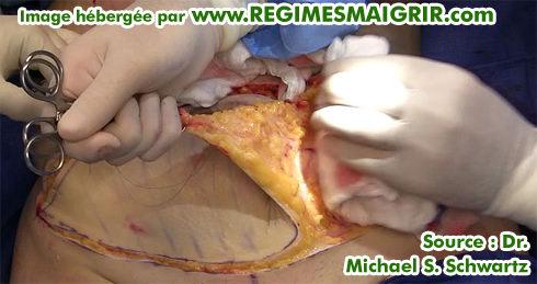 Enlèvement de 100 cm carres de peau environ lors de une abdominoplastie